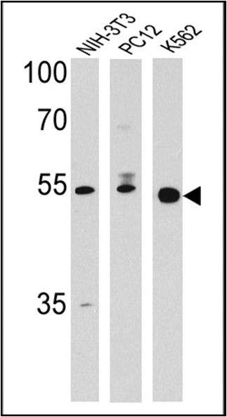 PPAR delta Antibody (PA1-823A) in Western Blot