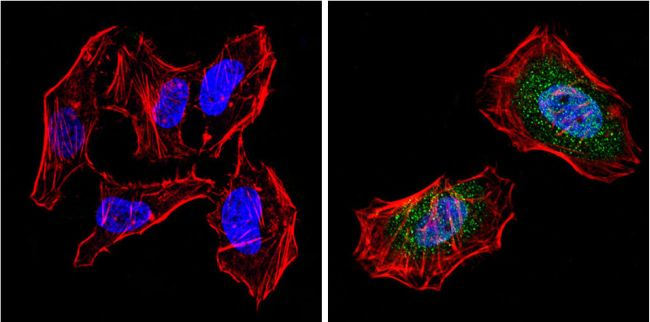 PPAR gamma Antibody (PA1-824) in Immunofluorescence
