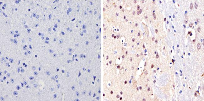NCoR2 Antibody (PA1-843) in Immunohistochemistry (Paraffin)