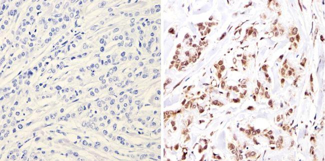 NCoR1 Antibody (PA1-844A) in Immunohistochemistry (Paraffin)