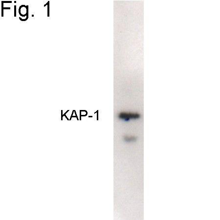 TRIM28 Antibody (PA1-852) in Western Blot