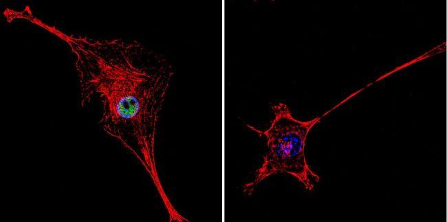 HDAC2 Polyclonal Antibody