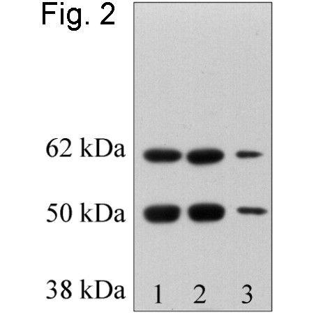 RbAp48 Antibody (PA1-869) in Western Blot