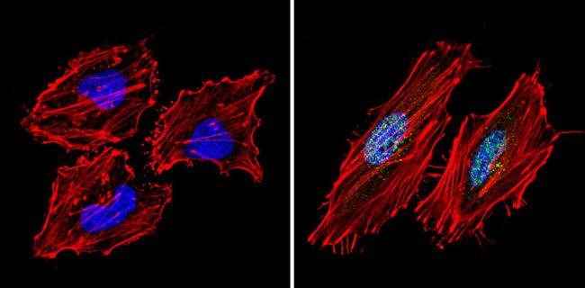 SIN3A Antibody (PA1-870) in Immunofluorescence