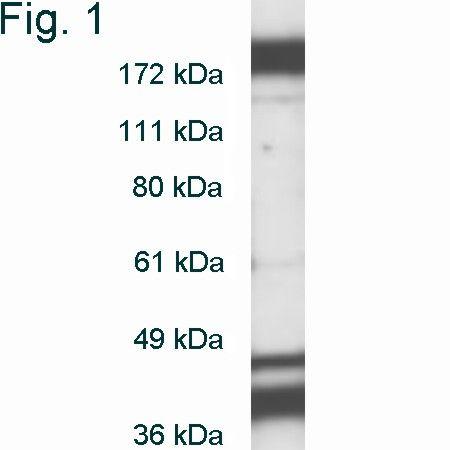 DNMT1 Antibody (PA1-880) in Western Blot