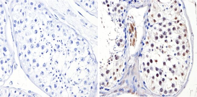 DNMT3B Antibody (PA1-884) in Immunohistochemistry (Paraffin)