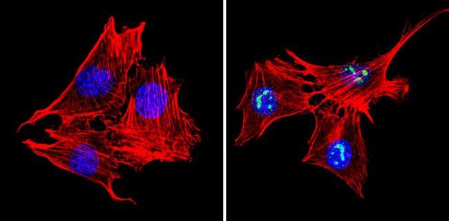 MECP2 Antibody (PA1-887)