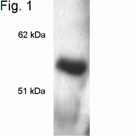 MECP2 Antibody (PA1-888) in Western Blot