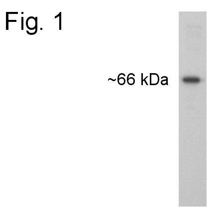 Calreticulin Antibody (PA1-902A) in Western Blot