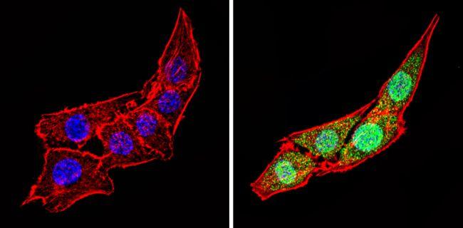 Calsequestrin Antibody (PA1-913)