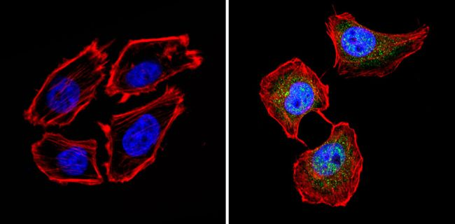 Calcium Sensing Receptor Antibody (PA1-934A) in Immunofluorescence