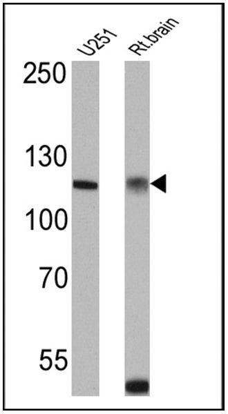Calcium Sensing Receptor Antibody (PA1-934A) in Western Blot