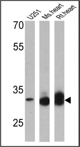 VDAC Antibody (PA1-954A) in Western Blot