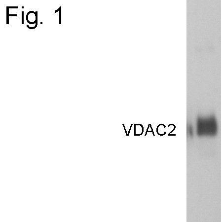 VDAC2 Antibody (PA1-958)