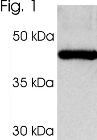 PSMC3 Antibody (PA1-968)