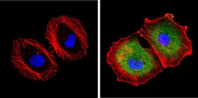PSME2 Antibody (PA1-976) in Immunofluorescence