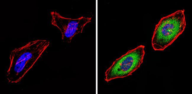 PSMB6 Antibody (PA1-978) in Immunofluorescence