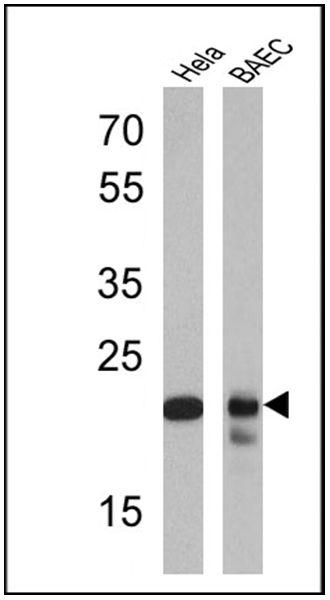 PSMB6 Antibody (PA1-978) in Western Blot