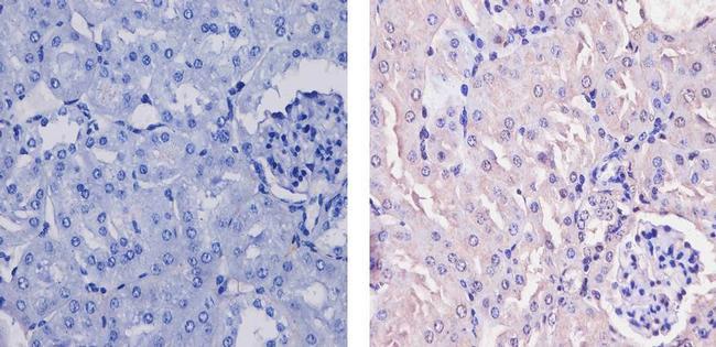 CaMKI Antibody (PA1-543) in Immunohistochemistry (Paraffin)