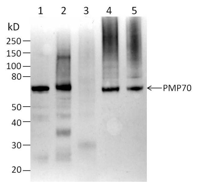 PMP70 Antibody (PA1-1650) in Western Blot