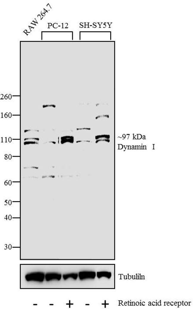 Dynamin 1 Antibody (PA1-660) in Western Blot