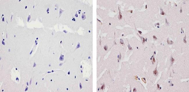 Ubiquilin 1 Antibody (PA1-759) in Immunohistochemistry (Paraffin)