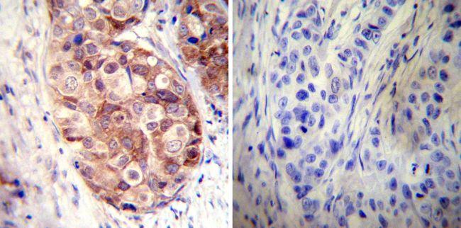 HSP90 alpha Polyclonal Antibody