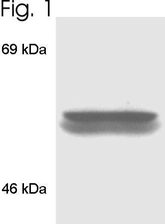 FKBP4 Antibody (PA3-020) in Western Blot
