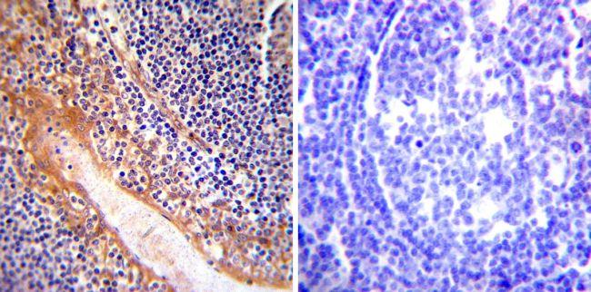 eNOS Antibody (PA3-031A) in Immunohistochemistry