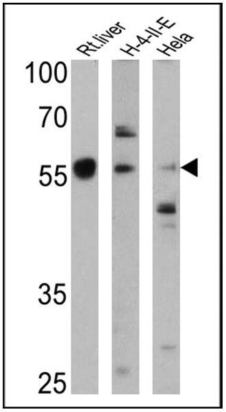 Cyp4a10 Antibody (PA3-033) in Western Blot