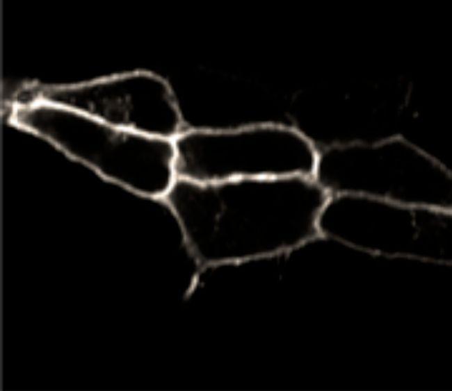 Endothelin B Receptor Antibody (PA3-066) in Immunocytochemistry