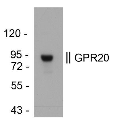 GPR20 Antibody (PA3-068) in Western Blot