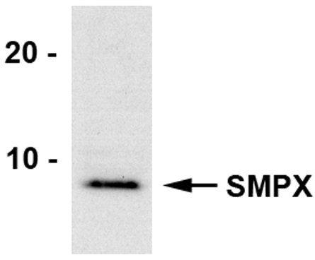 SMPX Antibody (PA3-070) in Western Blot