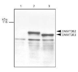 DNMT3B Antibody (PA3-16558) in Western Blot