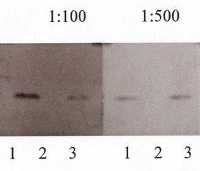 Amyloid beta 40 Antibody (PA3-16760) in Western Blot