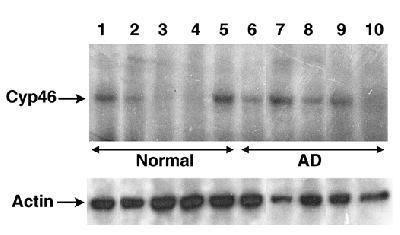 CYP46A1 Antibody (PA3-16810) in Western Blot