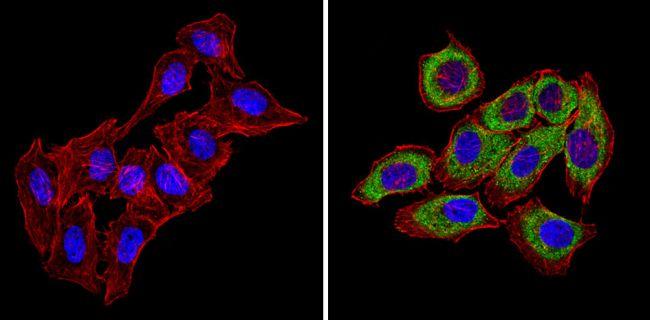 CXCR4 Polyclonal Antibody