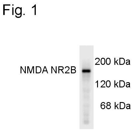 NMDAR2B Antibody (PA3-4665) in Western Blot