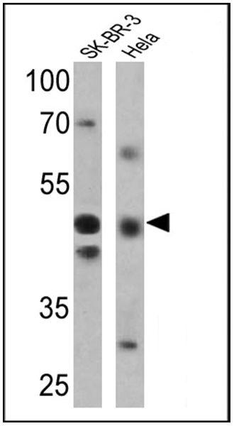 RARG Antibody (PA3-814)