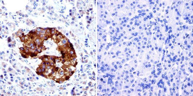 PDX1 Antibody (PA3-830)