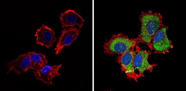 IGF2R Antibody (PA3-850)
