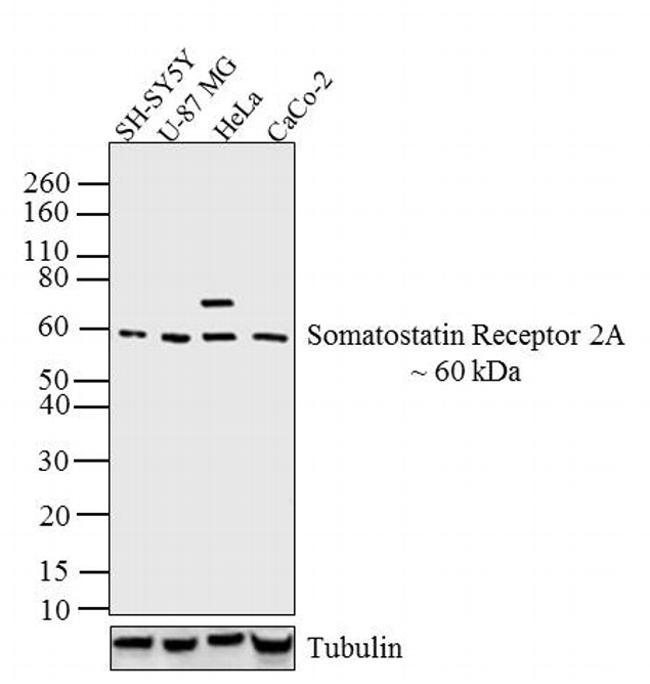 SSTR2 Antibody (PA3-109) in Western Blot