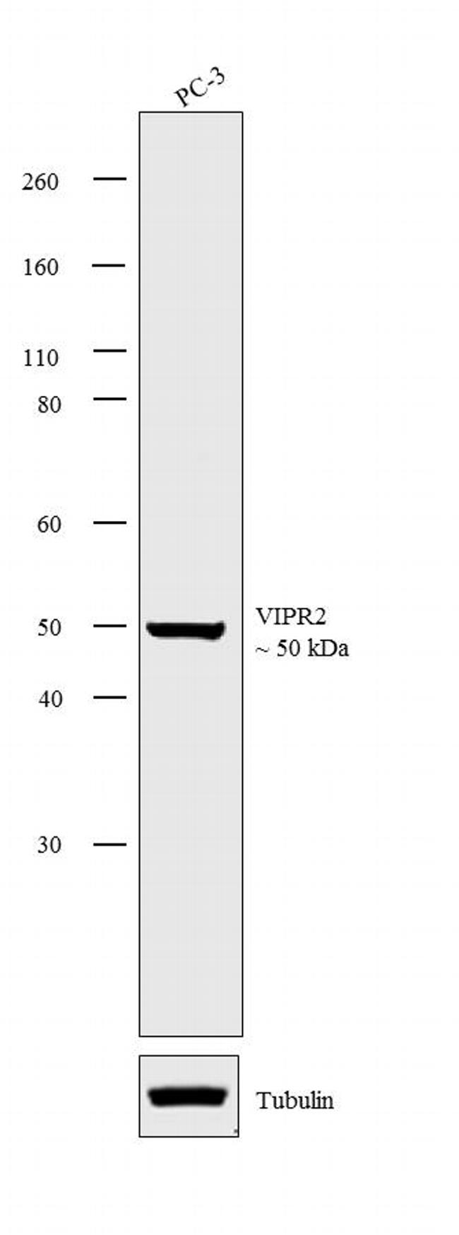 VIPR2 Antibody (PA3-114) in Western Blot