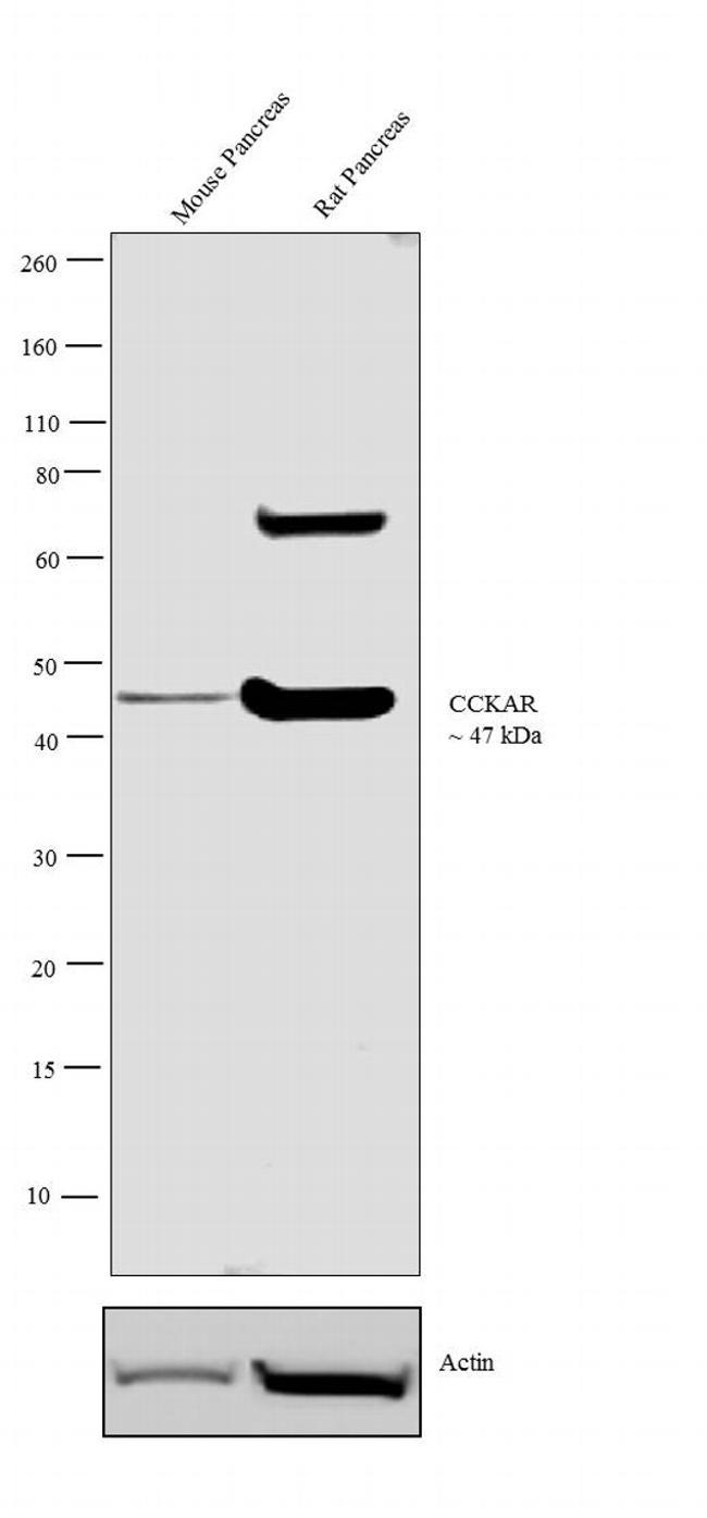 CCKAR Antibody (PA3-116) in Western Blot