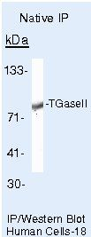 TGM2 Antibody (PA5-16269) in Immunoprecipitation