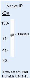 TGM2 Antibody (PA5-16272) in Immunoprecipitation