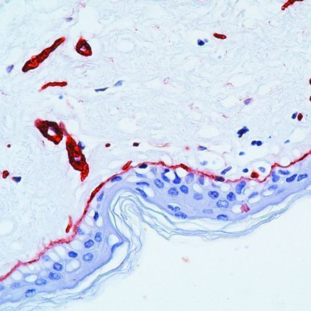 Laminin Antibody (PA5-16287) in Immunohistochemistry