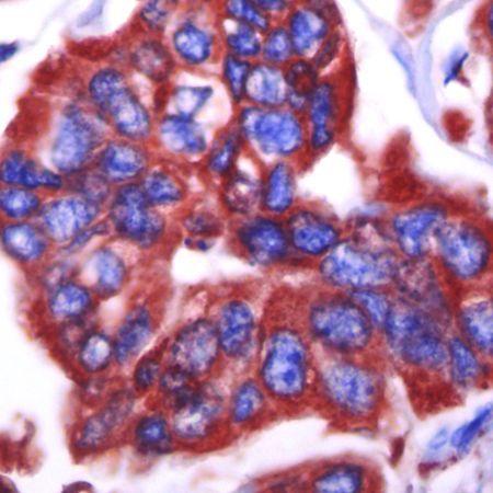 GRP94 Antibody (PA5-16310)