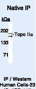 TOP2A Antibody (PA5-16322) in Immunoprecipitation