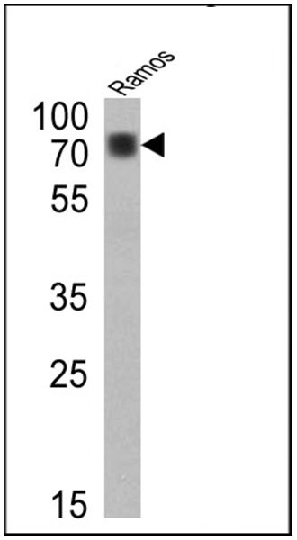 Human IgD (Heavy chain) Secondary Antibody (PA5-16400) in Western Blot